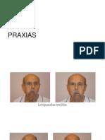 PRAXIAS,SOPLO,SOBREARTICULACIÓN