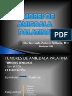 Tumores de Amigdala Palatina Fina (1)