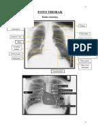 Radiologi Unibraw Catetan Koas