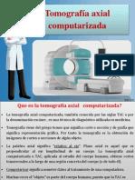 Tomografiaaxialcomputarizada 110824161651 Phpapp01 3