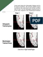 Functional MRI Images Morp