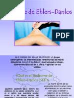Síndrome+Ehlers+Danlos