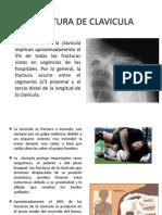 Fractura de Clavicula (1)