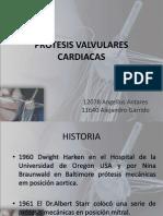 Prótesis Valvulares Cardiacas