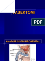 Vasektomi