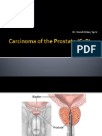 Carcinoma of the Prostate Cap