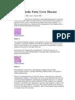 Medscape Nonalcoholic Fatty Liver Disease