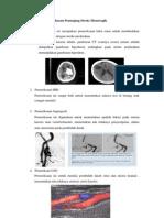 Diagnosis Penunjang Stroke