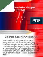 ST elevasi myocardial infarction