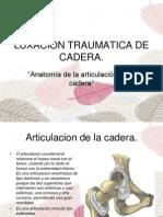 Luxacion Traumatica de Cadera.ppt 1