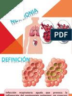 Alveolitis y Neumonia