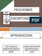 Infecciones Odontogenicas AAA