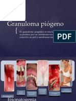 Granuloma piogeno corregido
