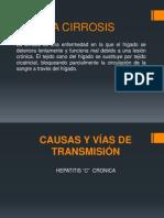La Cirrosis