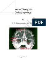 Role of X-rays in otolaryngolgoy