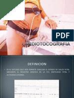 cardiotocografia -enfermeria