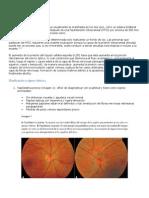 Papiledema y Neuritis Óptica