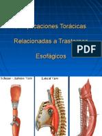 Complicaciones toracicas en transtornos esofagicos