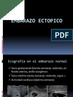 embarazoextopico2012-121020215832-phpapp02