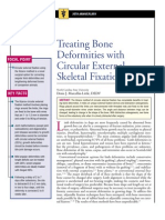 Treating Bone Deformities With Circular External Skeletal Fixation
