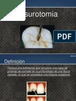 Fisurotomia.pptx