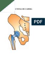 Prótesis de Cadera_ Educacion de Pacientes_doc 1