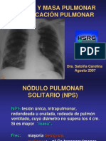 nodulo-pulmonar4855
