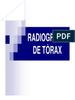 radiografiadetraxmododecompatibilidad