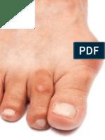 No More Gout Pain
