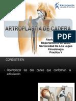 Artroplastia de Cadera