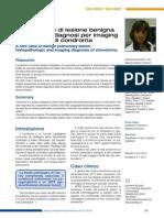 Lesione Benigna Polmonare