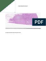 Cellular Injury and Adaptation II