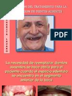 planificacion del tratamiento para la sustitucion de dientes ausentes.pptx