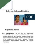 Enfermedades Del Tiroides