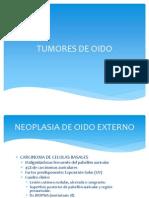 Tumores de Oido