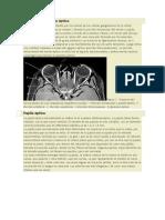 Anatomía Del Nervio Óptico