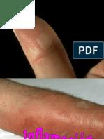 6 -Pato 6 Inflamación 1