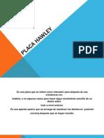 Presentación Placa Hawley