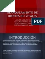 blanqueamientodedientesnovitalesequipo5-120419132428-phpapp01