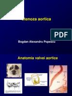 Stenoza aortica