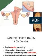 Kanker Leher Rahim (Ca Servix)