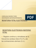 Monitoria Fetal Electrónica