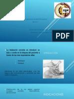 Presentación1 intubo
