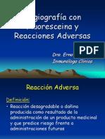 Angiografia Con Fluoresceina y Reacciones Adversas