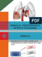 embolia hemorragia e infarto pulmonar
