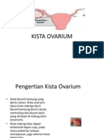 KISTA-OVARIUM.ppt