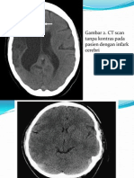 Gambaran Ct Scan
