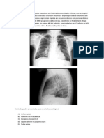 Edema Pulmonar Questoes