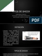 Shock y Sdra