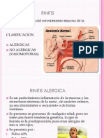 Rinitis Epistaxis